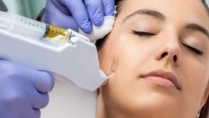 Blogbeitrag der Hautarztpraxis in Berlin-Mitte - PRP Therapie in Berlin