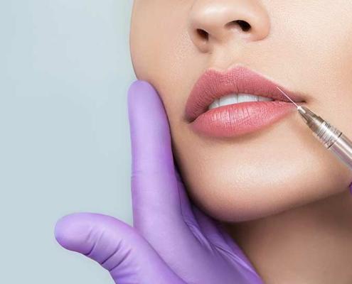 Natürlich volle Lippen | Hautarztpraxis Berlin - Dr. Reytan